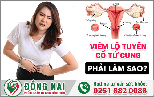 Bị viêm lộ tuyến tử cung thì phải làm sao?