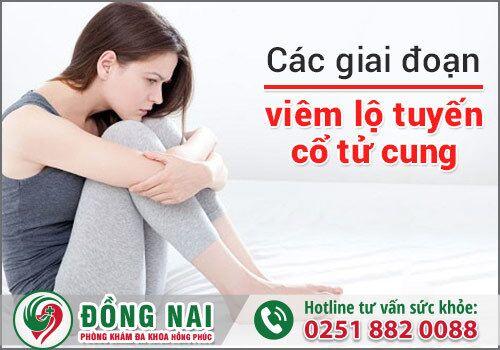 Các giai đoạn của căn bệnh viêm lộ tuyến cổ tử cung