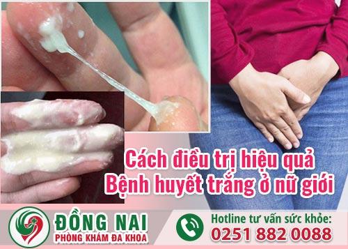 Cách điều trị hiệu quả bệnh huyết trắng ở nữ giới
