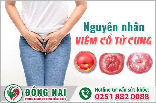 Nguyên nhân viêm cổ tử cung, cách điều trị dứt điểm