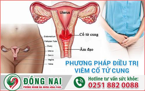 Các phương pháp điều trị viêm cổ tử cung hiệu quả nhất hiện nay