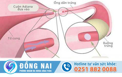 Nguyên nhân hẹp ống dẫn trứng