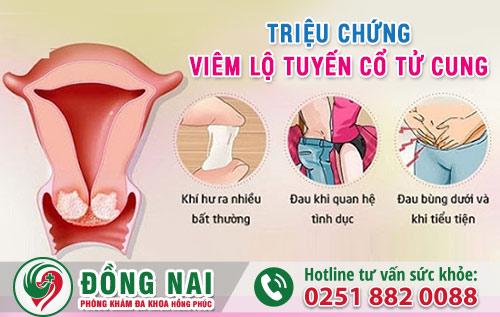 Triệu chứng thường gặp của viêm lộ tuyến cổ tử cung